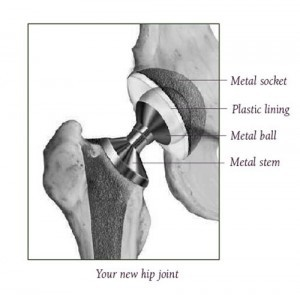 Your New Artificial Hip Joint