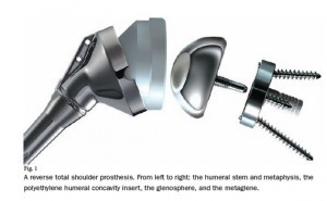 Reverse shoulder replacement prosthesis