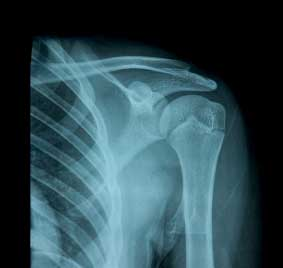 xray-shoulder-joint