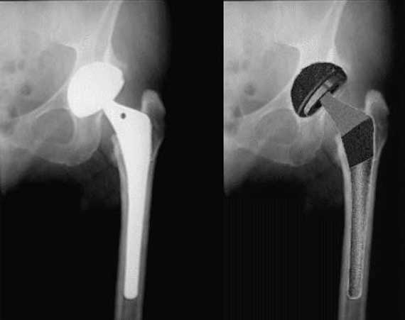 X-ray of hip replacement to make sure it is in position (Left). Illustration of how implant looks in place. (Right)