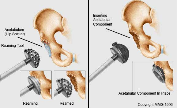 Acetabulum reamed and component put in place.