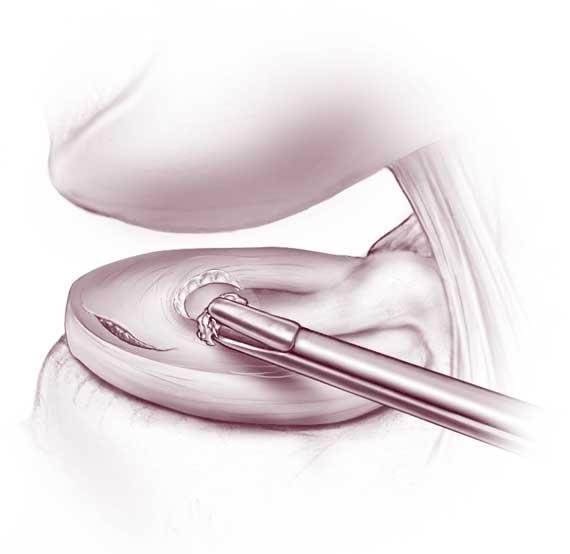 ...сустава, уточняется характер и степень повреждения мениска.