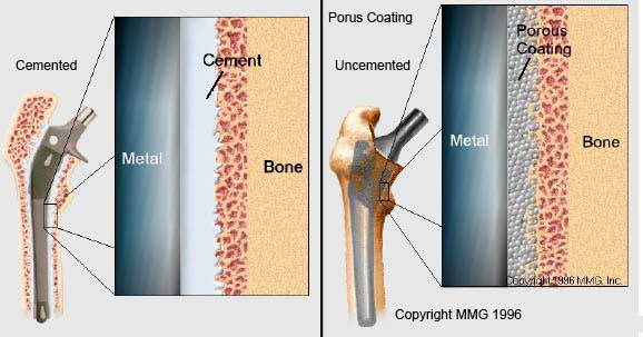 Cemented and Uncemented Prosthesis