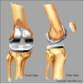 Completed knee replacement