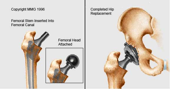 types of hip prothesis sizes