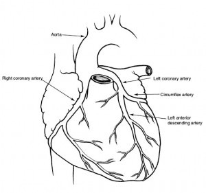 Heart showing coronary arteries