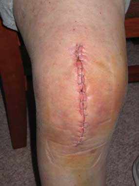 Knee replacement incision closed with staples