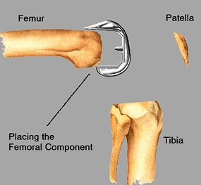 Placing femoral component on prepared femur