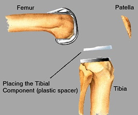 Placing tibial component - plastic spacer