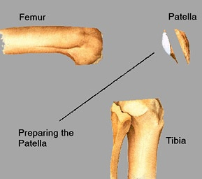 Preparing the Patella (kneecap)