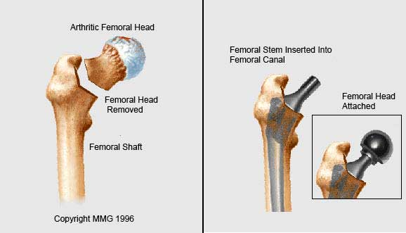 Removal of femoral head.