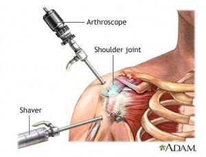 shoulder-arthroscopy-illustration-adam