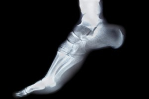 Foot Xray on toes