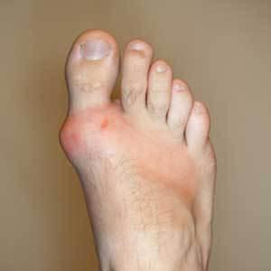gout-in-big-toe