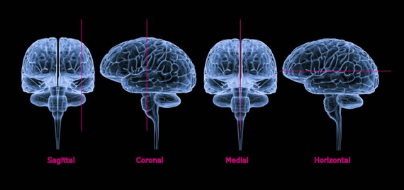 Sectioning the brain