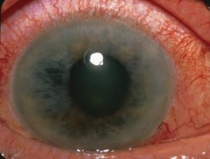 GlaucomaIntro