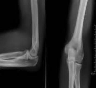 Elbow X Ray