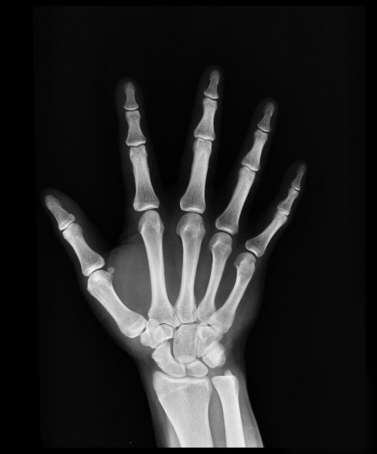 An x ray image of a man's right hand