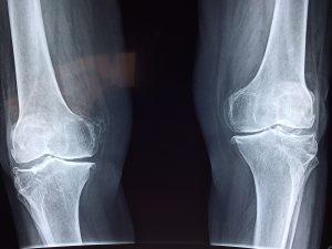Knees X Ray